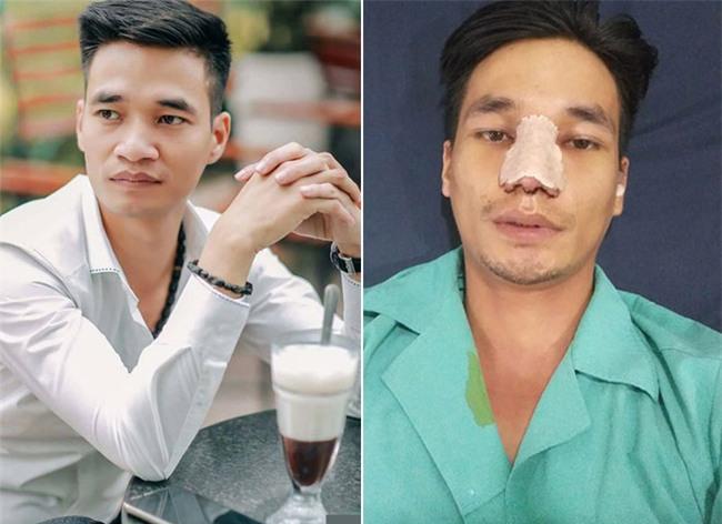 Hình ảnh đẹp trai của Lệ Rơi sau phẫu thuật thẩm mỹ khiến nhiều người ngỡ ngàng-2