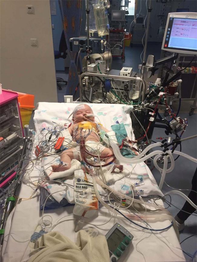 Em bé sơ sinh kiên cường nhất quả đất, giành lại sự sống từ tay tử thần sau 15 tiếng đồng hồ tim ngừng đập - Ảnh 3.