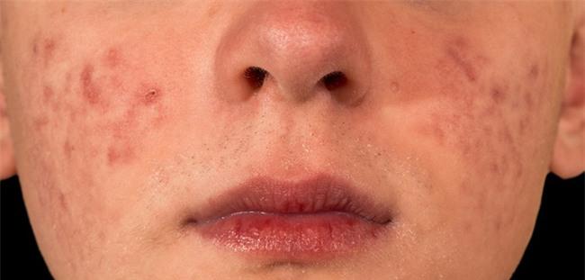 7 vấn đề về da bạn không bao giờ được lờ đi nếu không sẽ càng nghiêm trọng - Ảnh 2.
