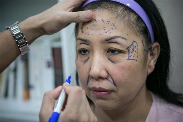 Trung Quốc: Trốn nợ thẻ tín dụng 120 tỷ, người phụ nữ đi phẫu thuật thẩm mỹ để không ai biết mặt - Ảnh 1.
