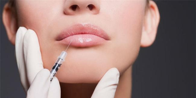 Bác sĩ cảnh báo về tác dụng phụ đáng sợ của việc bơm môi, trước khi làm đẹp chị em cần phải suy nghĩ kỹ - Ảnh 2.
