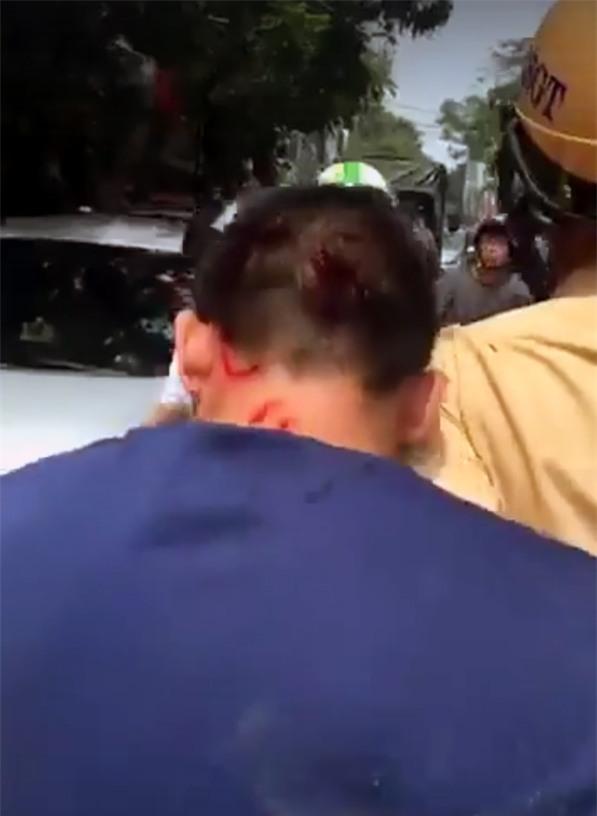 Tài xế ô tô bị một số thương tích trên đầu.