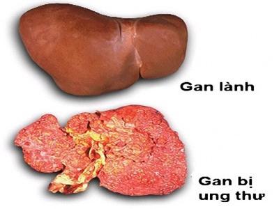 Điểm khác nhau giữa gan lành và gan bị ung thư.