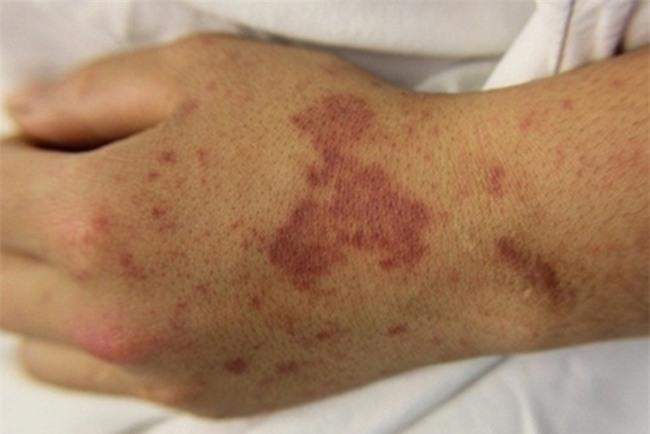 TP.HCM: Xót xa bé gái 2 tuổi bị đoạn tứ chi vì viêm não mô cầu - Ảnh 2.