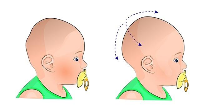 7 dấu hiệu sức khỏe nghiêm trọng dễ bị bỏ qua ở trẻ - 4