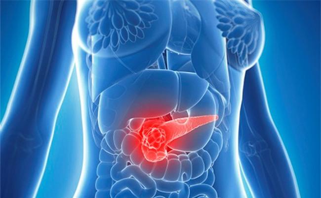 1 triệu chứng sau ăn cảnh báo 3 bệnh ung thư nguy hiểm: Chớ coi thường!