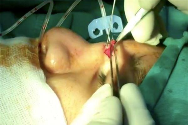 nâng mũi, phẫu thuật thẩm mỹ, Trần Thiết Sơn