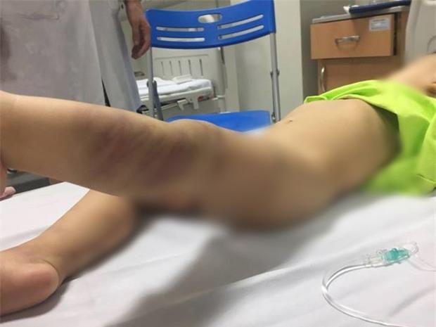 Công an Hà Nội khởi tố vụ bé trai bị bỏ rơi ở bệnh viện có nhiều vết thương tích - Ảnh 1.