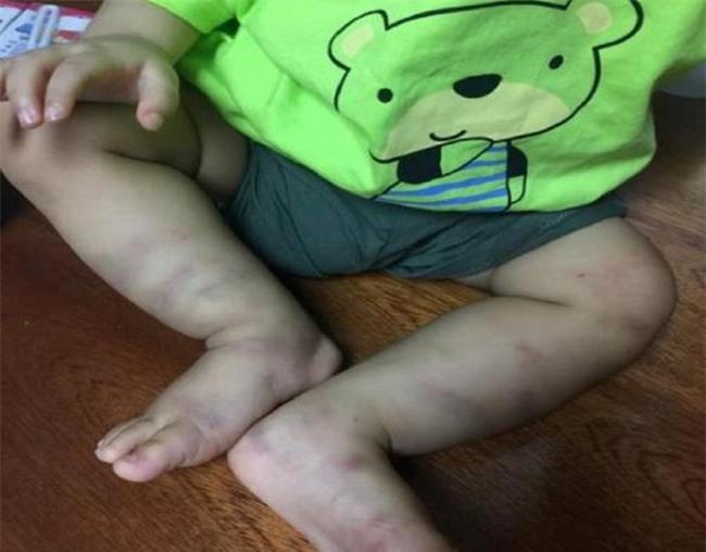 Tìm được người bỏ rơi bé trai 1 tuổi bị bạo hành dã man - Ảnh 2.