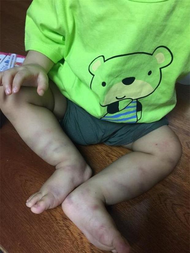 Vụ bé trai 14 tháng tuổi nghi bị bạo hành: Người mẹ buôn bán ma túy tha lôi cháu bé lang thang khắp nơi - Ảnh 1.