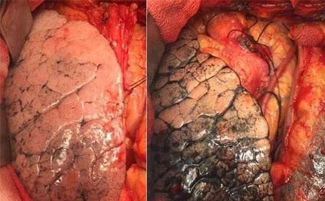 """Chuyên gia ung thư: Nếu bỏ thói quen này bạn tránh được """"sát thủ ung thư"""" mạnh tay nhất"""