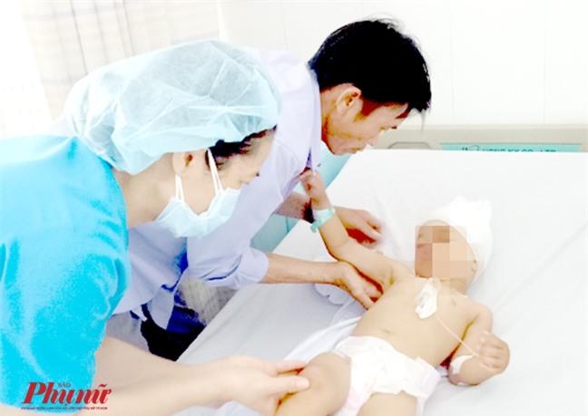 Ném gối từ cầu thang xuống đất, bé gái 4 tuổi bị chấn thương sọ não - Ảnh 1.