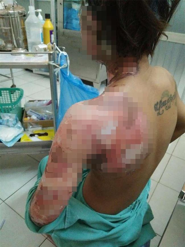 Giận vợ, chồng tưới xăng dọa đốt nhà, lửa bùng cháy gây bỏng cho cả đứa con mới hơn 2 tuổi  - Ảnh 1.
