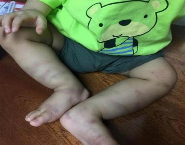 Vụ bé trai 1 tuổi bị bạo hành: Người mẹ có nguyện vọng nếu bị thi hành án không muốn đưa con vào trại - Ảnh 2.