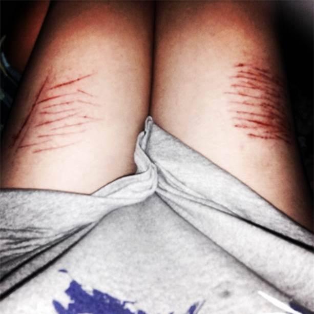 Nữ sinh 21 tuổi dùng dao tự rạch cơ thể nhằng nhịt: Loại bệnh cha mẹ không thể bỏ qua! - Ảnh 2.
