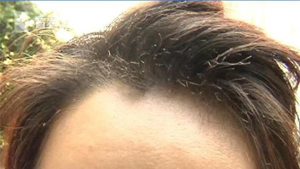 Trung Quốc: Đang ăn lẩu ngoài hàng thì lửa bùng vào mặt, cô gái trẻ bị bỏng vùng mắt, cháy sém tóc mái - Ảnh 3.