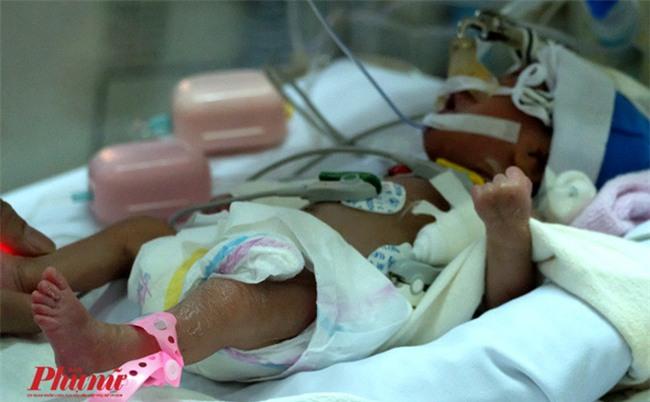 Bé gái vừa chào đời đã lên cơn nghiện ma túy