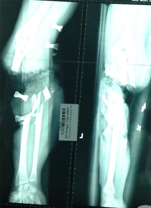 Theo mẹ đến xưởng làm, bé trai 5 tuổi bị băng chuyền sản xuất cuốn đứt cánh tay thương tâm - Ảnh 2.