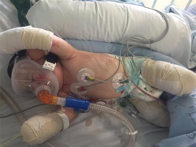 Viêm màng não đã khiến bé trai này chịu thương tổn thế nào, các cha mẹ cần biết - Ảnh 1.