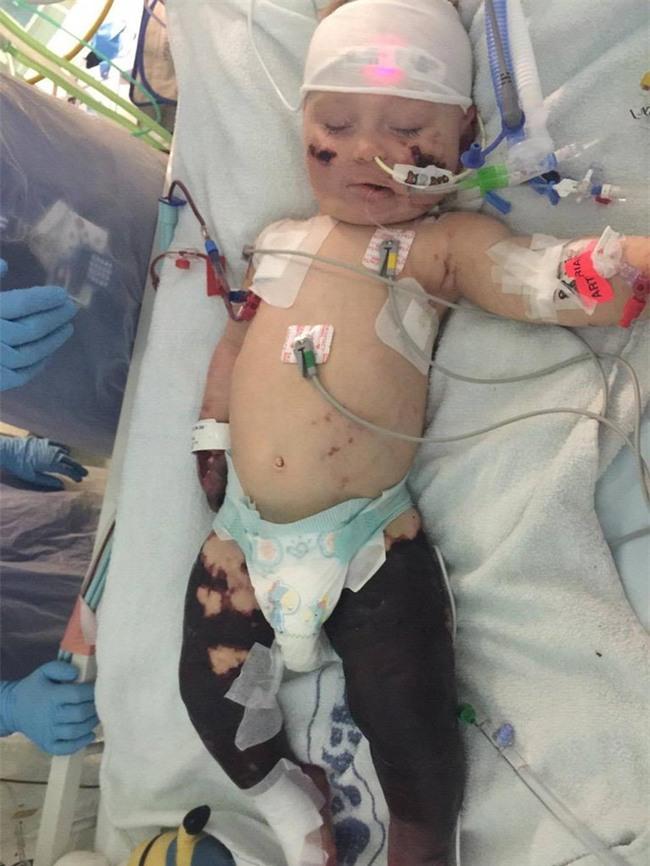 Viêm màng não đã khiến bé trai này chịu thương tổn thế nào, các cha mẹ cần biết - Ảnh 3.
