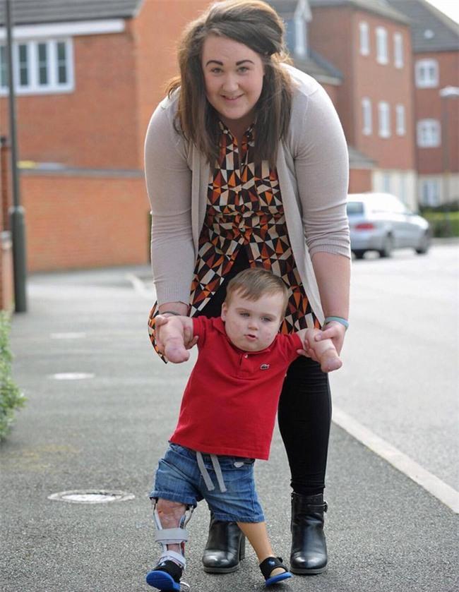 Viêm màng não đã khiến bé trai này chịu thương tổn thế nào, các cha mẹ cần biết - Ảnh 7.