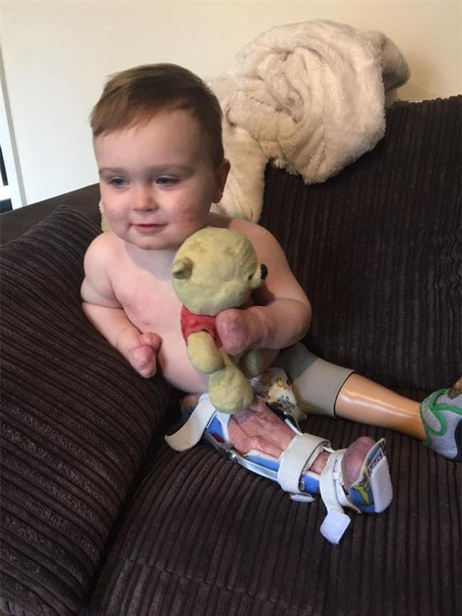 Viêm màng não đã khiến bé trai này chịu thương tổn thế nào, các cha mẹ cần biết - Ảnh 9.