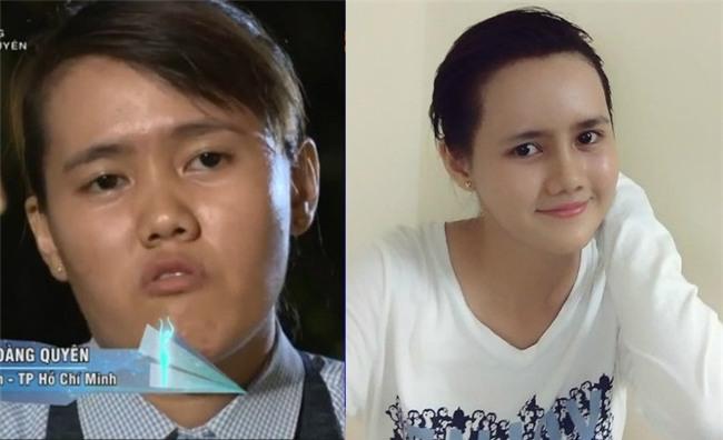 Mất tích 1 năm, cô gái 24 tuổi bị chê mặt lưỡi liềm trở về khiến mẹ nhận không ra-1