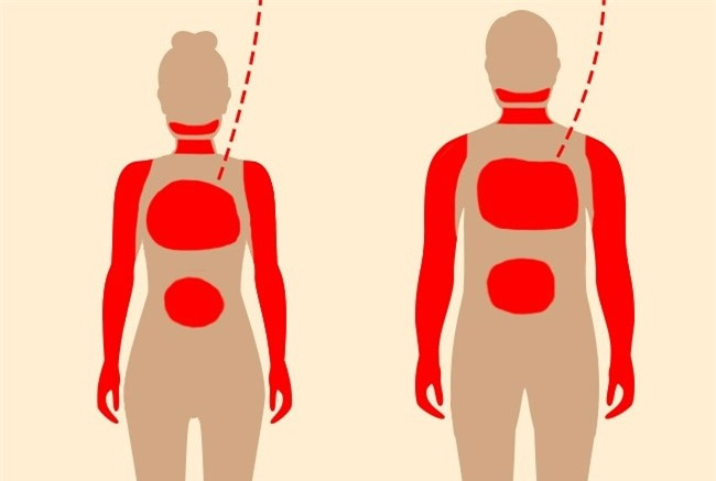 1 tháng trước khi cơn đau tim, cơ thể bạn sẽ cảnh báo với 7 tín hiệu này - Ảnh 9.