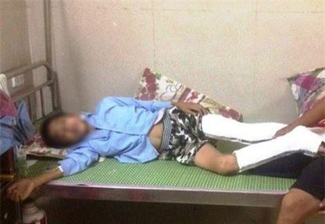 Em Q. đang nằm điều trị tại bệnh viện đa khoa Ninh Bình sau khi nhảy từ tầng 3 xuống đất, bị gãy và vỡ xương chân.