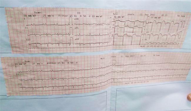Ca bệnh hi hữu: Vợ con rút ống thở để chuẩn bị làm hậu sự, người đàn ông bất ngờ sống dậy - Ảnh 3.