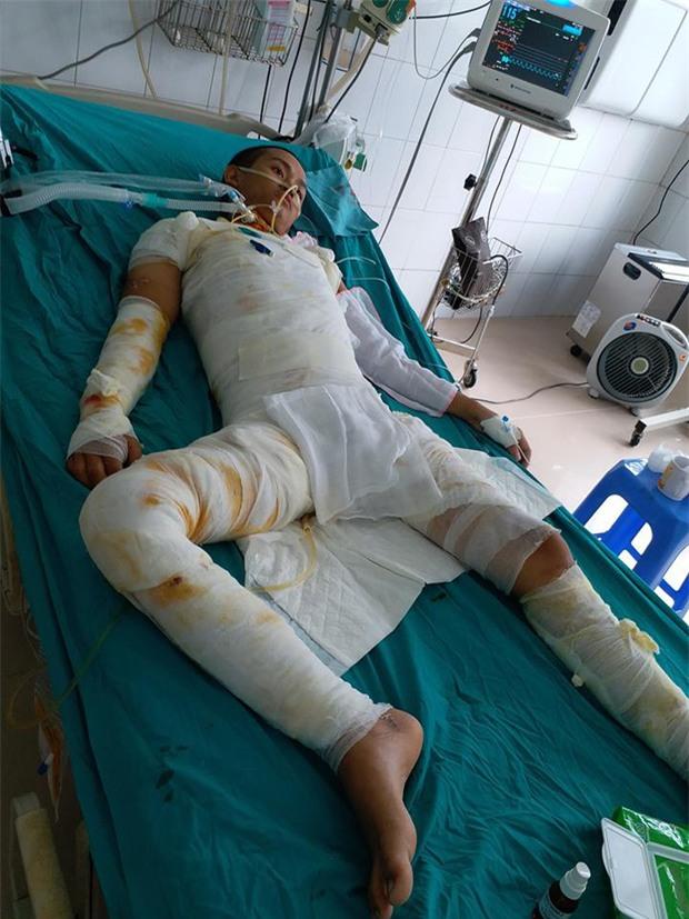 Hơn 20 ngày giành lại sự sống của chàng trai bị cháy ở xưởng bánh kẹo khiến 8 người tử vong - Ảnh 3.