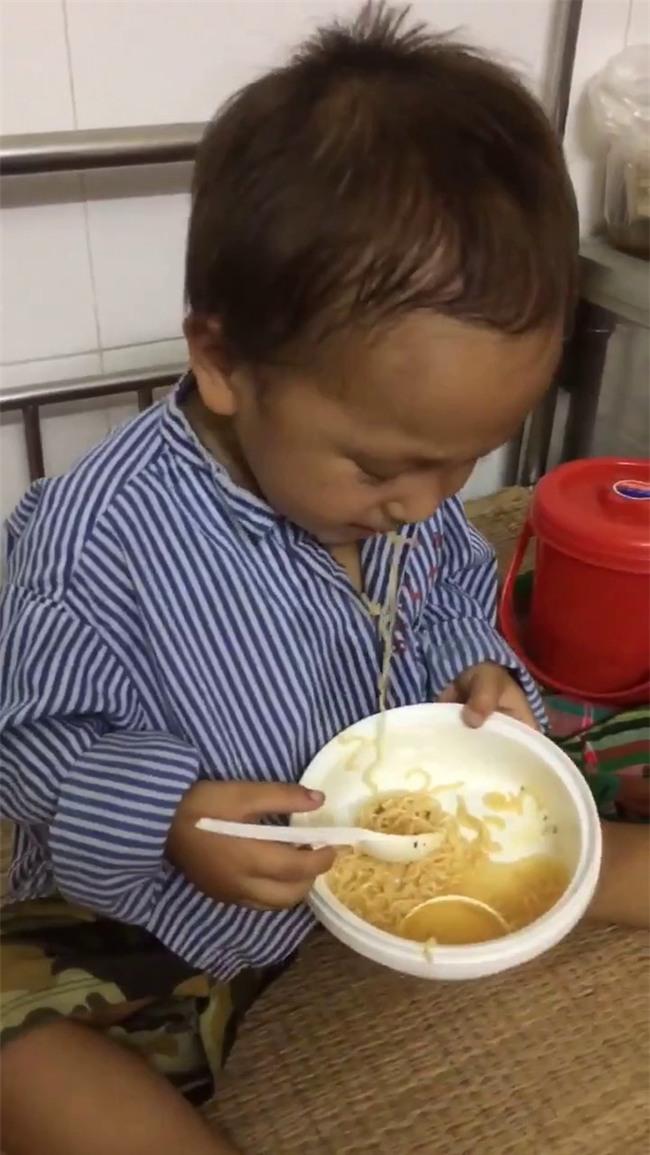 Nhói lòng hình ảnh cậu bé 3 tuổi người Mông vừa bị lũ cuốn mất nhà lại có nguy cơ mù mắt - Ảnh 2.
