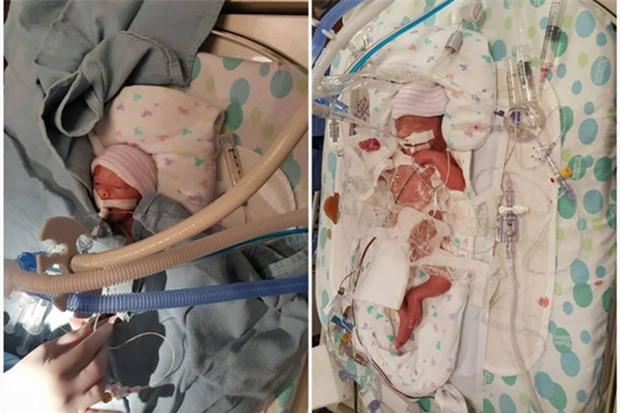 Kiệt sức sau phẫu thuật thay gan, lại nhận tin một đứa con vừa mất, bà đẻ này vẫn kiên trì hút sữa vì một lý do - Ảnh 2.