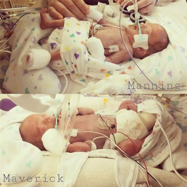 Kiệt sức sau phẫu thuật thay gan, lại nhận tin một đứa con vừa mất, bà đẻ này vẫn kiên trì hút sữa vì một lý do - Ảnh 3.