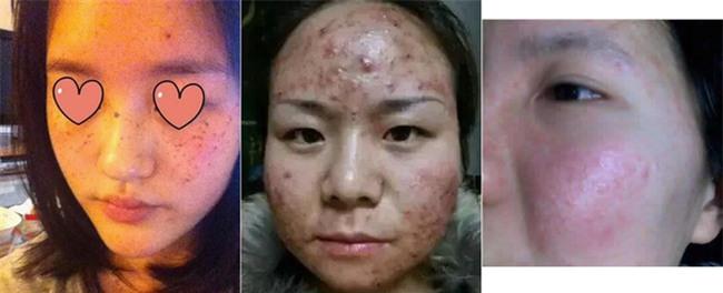 Cảnh báo: Mặt nạ giấy làm trắng giá rẻ có chứa huỳnh quang cực kì độc hại với sức khỏe - Ảnh 2.
