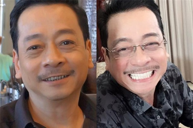 Từ bỏ nụ cười răng khểnh, Hoài Lâm cũng gia nhập tập đoàn sao răng sứ! - Ảnh 5.
