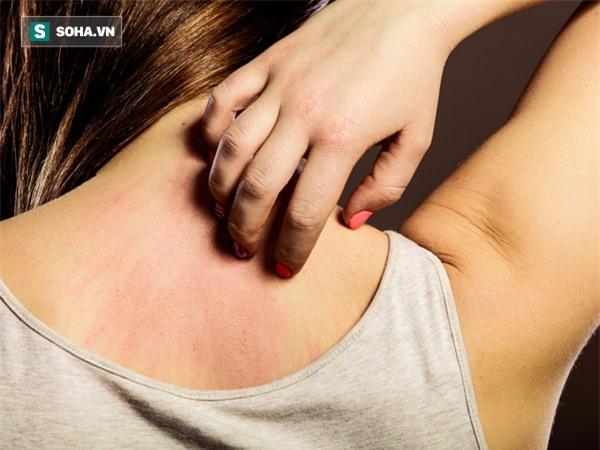 7 dấu hiệu cảnh báo ung thư mà 90% mọi người thường bỏ qua - Ảnh 1.