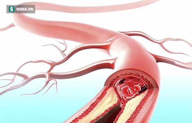 Bệnh tắc mạch máu dễ gây tử vong bất ngờ: 5 giải pháp này sẽ giúp bạn tự cứu mình - Ảnh 1.