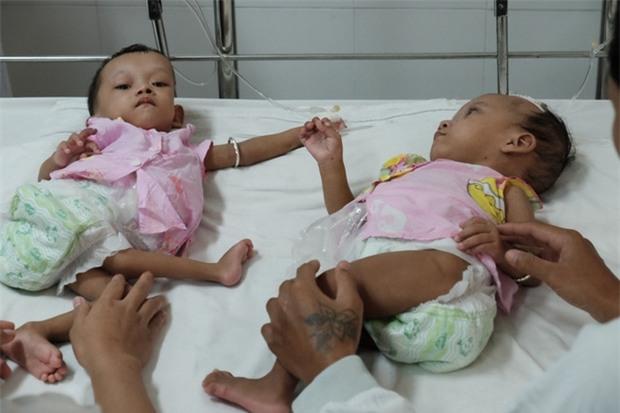 Lần đầu tiên sau năm 1975, Việt Nam xuất hiện hai bé gái song sinh dính nhau vùng cùng cụt - Ảnh 6.