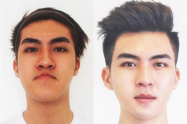 Sốc: Chàng trai Quảng Ninh mặt lưỡi liềm giờ đây đẹp như hotboy xứ Hàn-2