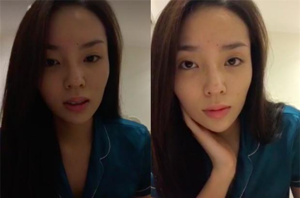 Mắt sưng húp, Kỳ Duyên lại vướng nghi vấn phẫu thuật thẩm mỹ - Ảnh 2.
