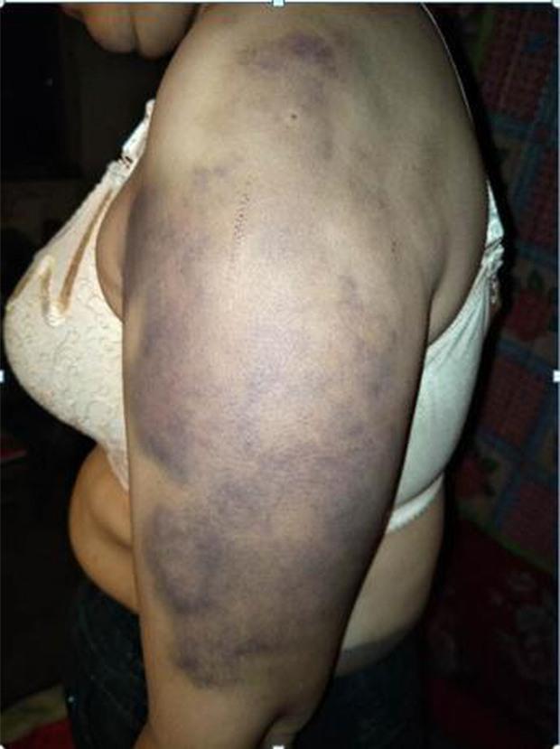 Người phụ nữ bị bạo hành suốt 20 năm, bị chồng giam giữ và ép hầu hạ cho nhân tình của anh ta - Ảnh 4.