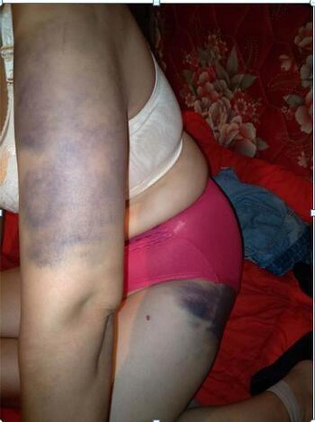 Người phụ nữ bị bạo hành suốt 20 năm, bị chồng giam giữ và ép hầu hạ cho nhân tình của anh ta - Ảnh 5.