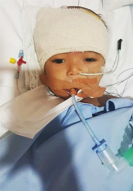 Lời kêu cứu của người vợ bị chồng bỏ rơi, con bệnh não úng thuỷ mấy lần chết hụt khi qua Singapore điều trị - Ảnh 1.