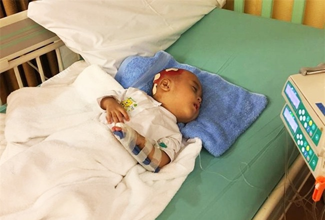 Lời kêu cứu của người vợ bị chồng bỏ rơi, con bệnh não úng thuỷ mấy lần chết hụt khi qua Singapore điều trị - Ảnh 9.