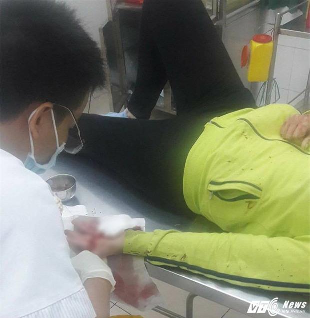 Chém xối xả lên người phụ nữ để cướp xe ở Đồng Nai - Ảnh 1.