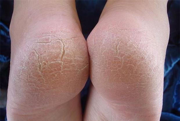 Tưởng vô hại, nhưng các vết chai chân này có thể là dấu hiệu của một căn bệnh cực kỳ nguy hiểm - Ảnh 2.