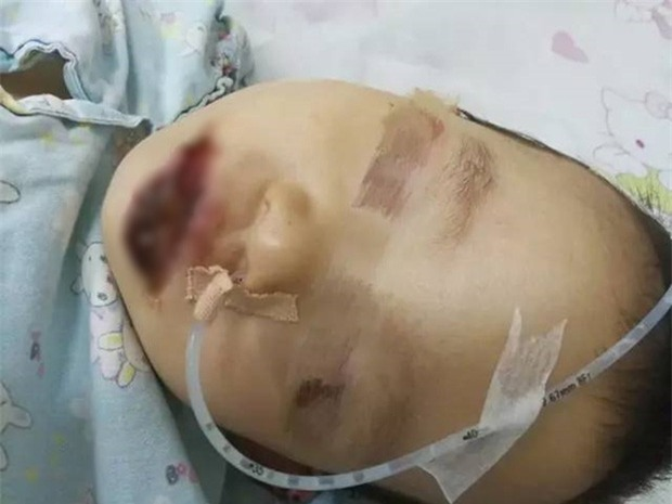 Người lớn bất cẩn, cô bé 2 tuổi bị cháy miệng vì nhầm tưởng chất tẩy rửa siêu mạnh là sữa bột - Ảnh 1.