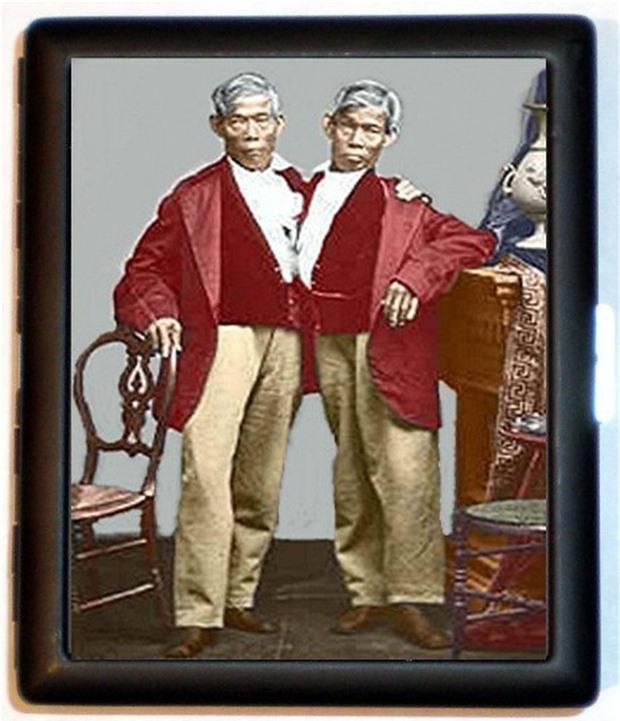 Ly kỳ đời sống của cặp song sinh dính liền thân vẫn lấy vợ, sinh tổng cộng 21 đứa con - Ảnh 3.