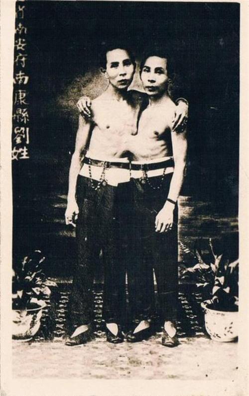Ly kỳ đời sống của cặp song sinh dính liền thân vẫn lấy vợ, sinh tổng cộng 21 đứa con - Ảnh 4.